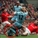 sports_injury_005