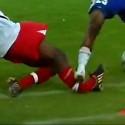 sports_injury_029