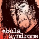 thumbs ebola syndrome